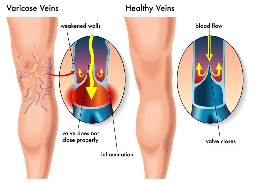 Varicose veins - Your Brand Of Beauty