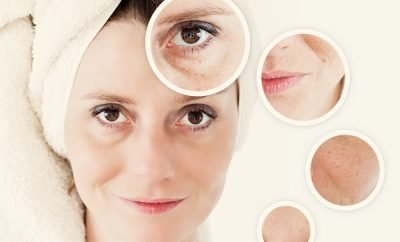 Dermatologist Dr. Meryl Joerg with Advanced Dermatology PC with Tips on Treating Unsightly and Embarrassing Age Spots   Your Brand Of Beauty