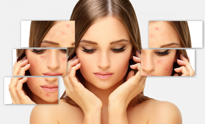 5 Key Acne-Fighting Skin Care Ingredients | Your Brand Of Beauty